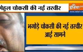 Mehul Choksi new image injury on eye face hand मेहुल चोकसी की नई तस्वीर आई सामने, मुंह पर भी दिख रहे- India TV Hindi