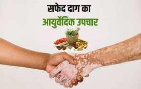 शरीर में पड़े सफेद दाग को खत्म करेंगे ये आयुर्वेदिक उपाय, जल्द ही दिखेगा असर- India TV Hindi