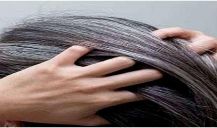 अगर आप अपने सफेद बालों से हैं परेशान, तो अपनाएं ये घरेलू नुस्खे