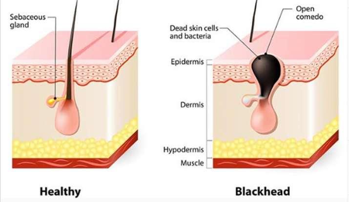 blackheads, home remedies for blackheads,blackheads cause