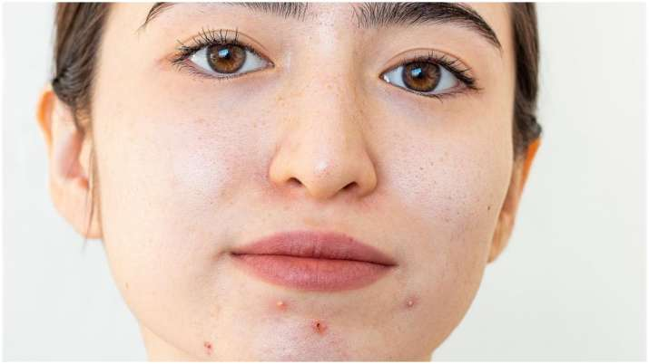 grapes for skin problems