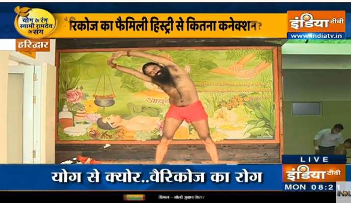 पैरों की नस में उलझन, मसल में ऐंठन हो सकती है वैरिकोज वेन्स के कारण, स्वामी रामदेव से जानिए कारगर इल