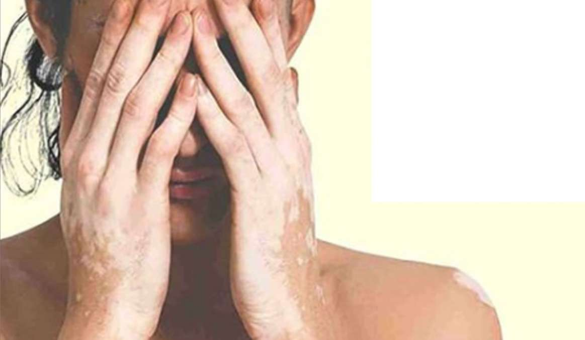 White spots on face treatment at home in hindi