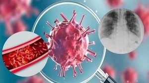 कोविड-19 महज फेफड़े की बीमारी नहीं है, इससे खतरनाक तरीके से खून का थक्का भी जम सकता है: विशेषज्ञ - India TV Hindi