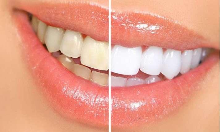 These domestic remedies have been adopted for the yellow teeth. दांतों के  पीलेपन से हैं परेशान तो अपनाए ये घरेलू नुस्खे - India TV Hindi News