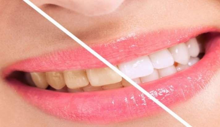 Simple Ways to Naturally Whiten Your Teeth at Home:कुछ ही दिनों में दांतों  का पीलापन हो जाएगा गायब, बस अपनाएं ये घरेलू उपाय - India TV Hindi News