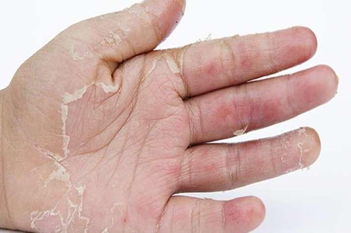 skin peeling- India TV Hindi