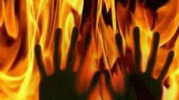 burnt alive- India TV Hindi