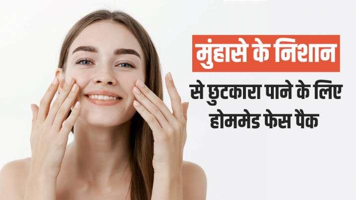 Skincare Tips: मुंहासे के दाग से छुटकारा पाने के लिए ट्राई करें ये 5 होममेड फेस पैक, दिखेगा असर
