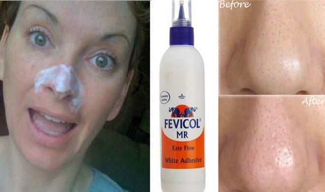 glue fevicol to remove blackheads- India TV Hindi