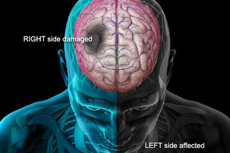 brain stroke - India TV Hindi