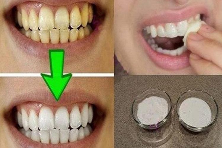 Teeth- India TV Hindi