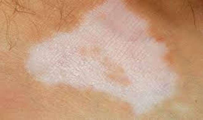 skin care- India TV Hindi