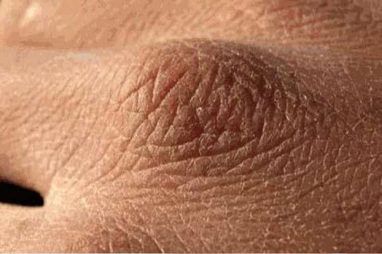 skin problem- India TV Hindi