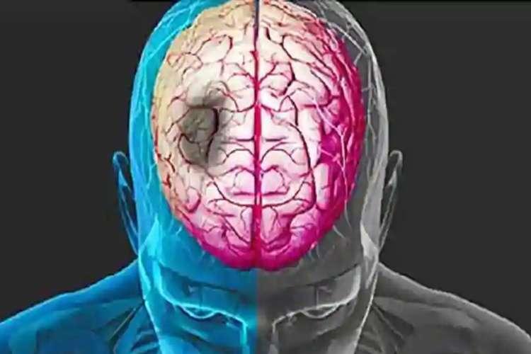 brain stroke- India TV Hindi