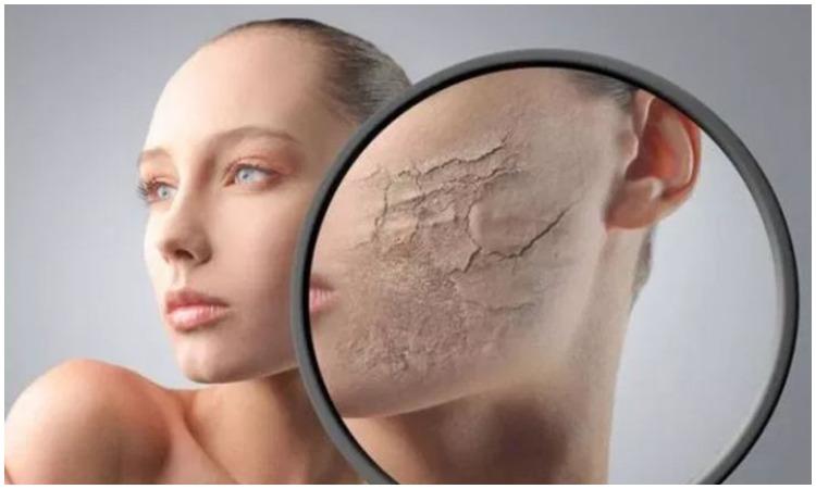 Dry and dull skin- India TV Hindi