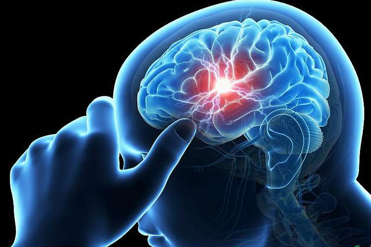 न्यूरोलॉजिकल...- India TV Hindi
