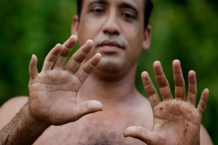 6 fingers per hand are better than 5 says research - India TV Hindi
