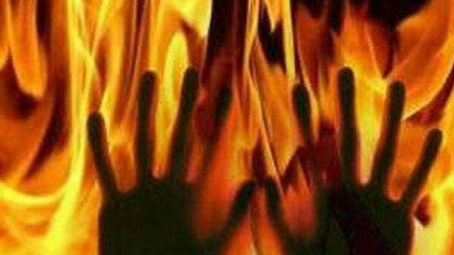 burnt- India TV Hindi