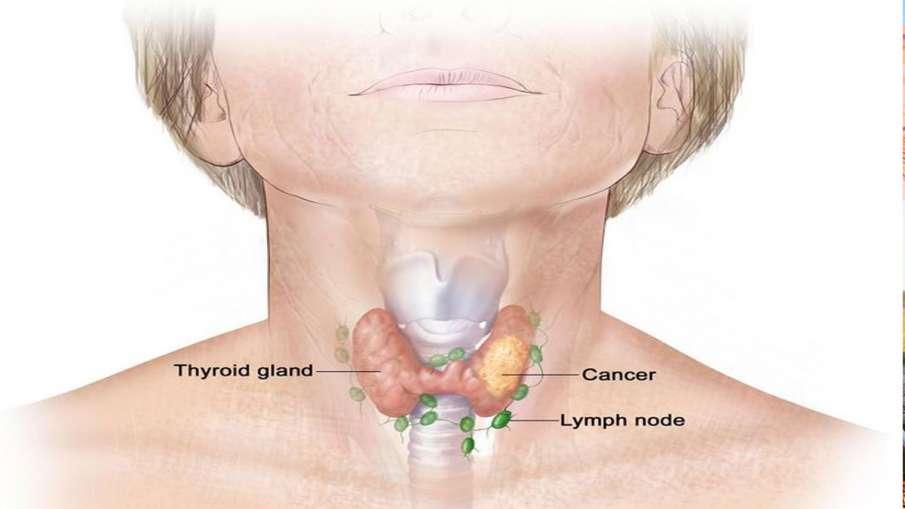 thyroid cancer- India TV Hindi
