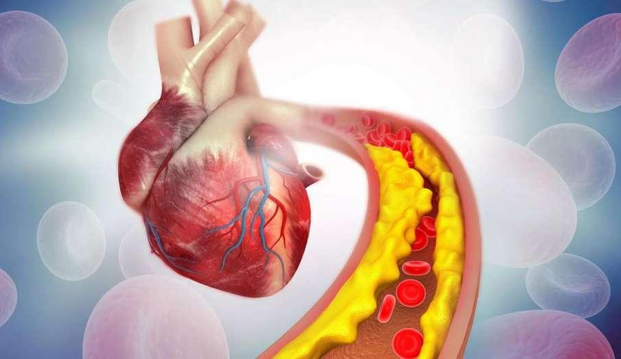 high cholesterol - India TV Hindi