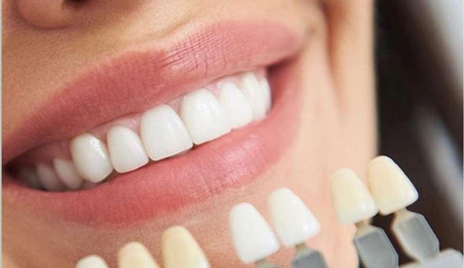 दांतों के पीलेपन के लिए घरेलू उपाय- India TV Hindi