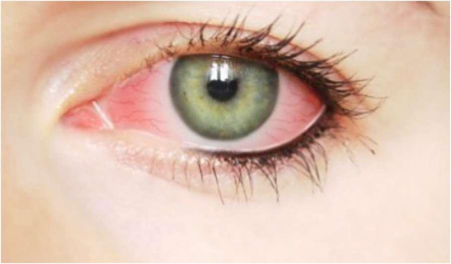 Eye Infection- India TV Hindi