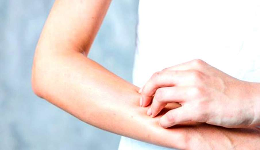 skin itching problems- India TV Hindi