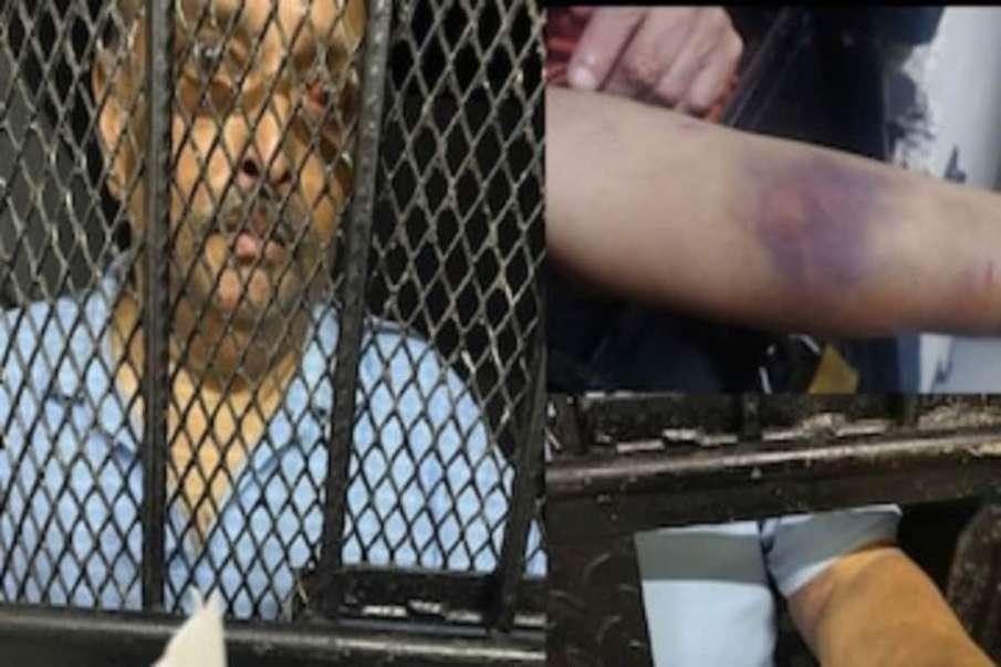 Mehul Choksis Extradition Hearing Dominica Court- India TV Hindi