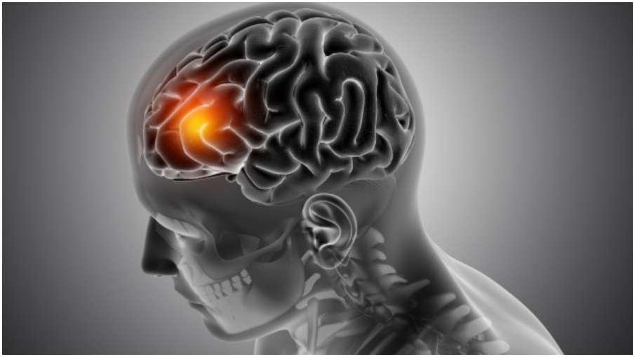 brain tumor- India TV Hindi