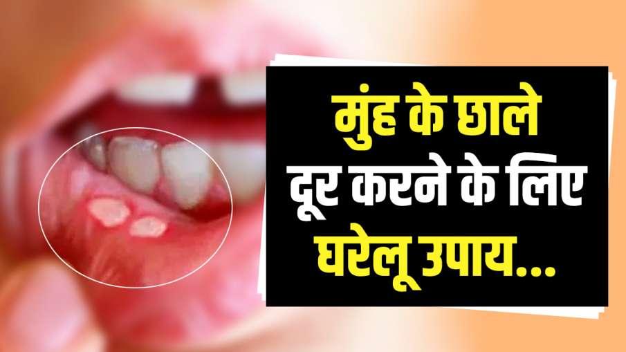 mouth ulcer tips - India TV Hindi