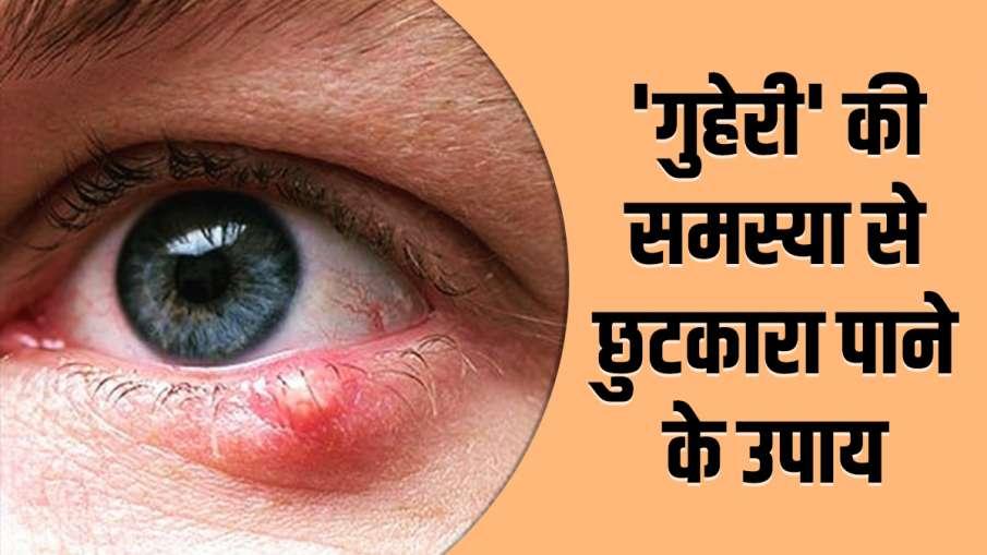 eyecare tips - India TV Hindi