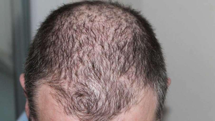 Hair Loss Complaints, Covid Patients Hair Loss, Covid Patients Hair Loss Complaints- India TV Hindi