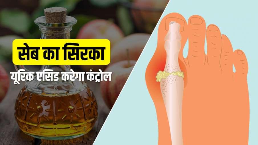 Apple Vinegar control Uric Acid- India TV Hindi