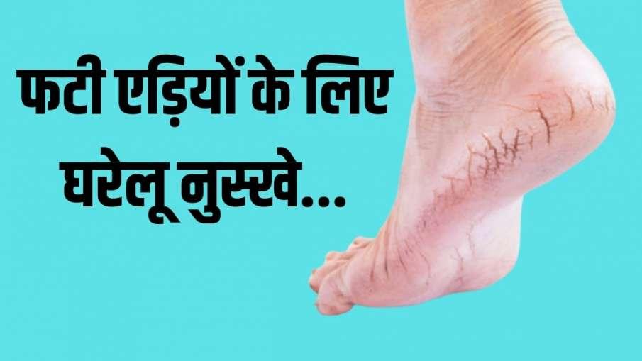 heel repair- India TV Hindi